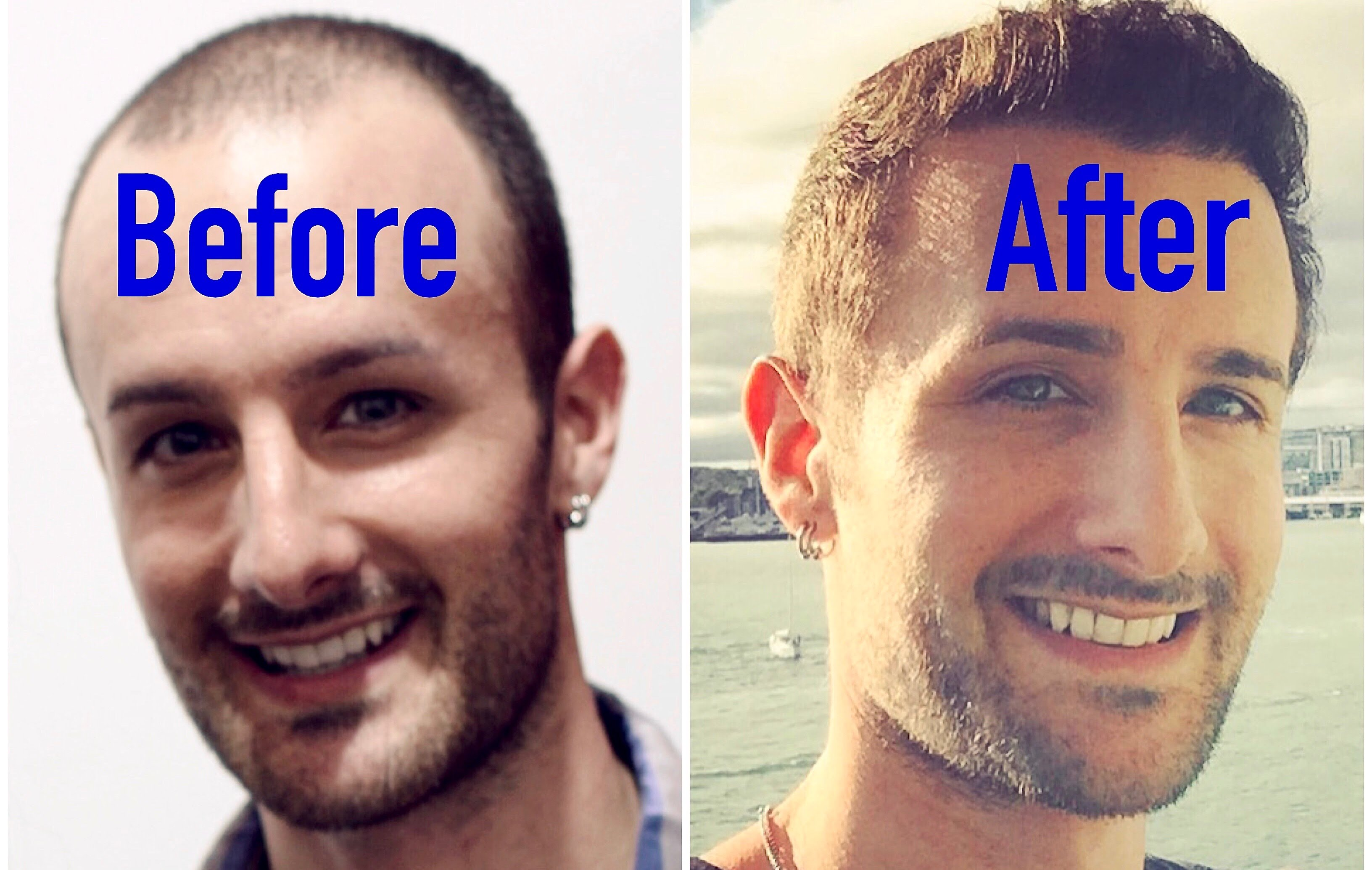 Finasteride Effects and Results